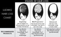 Die verschiedenen Stadien des Haarausfalls